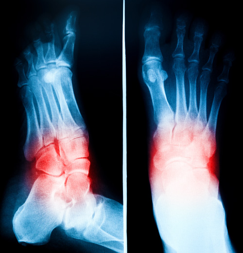 foot and ankle xray new orleans
